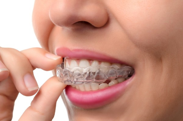 Clear Braces Florida | How to Know Which Type of Braces is Right for You